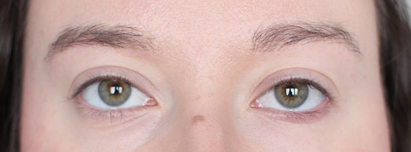 Saippuakulmat eli soap brows: lähtötilanne